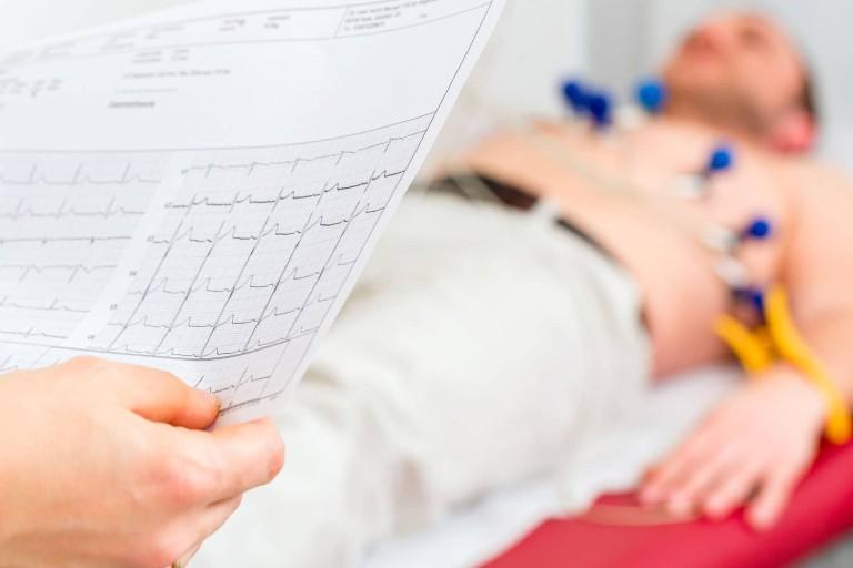 Cardialogy vapi- Coronary artery winking case